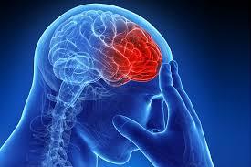 چند روش برای دور کردن سکته مغزی